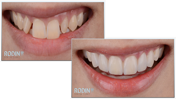Rodin Dental Clinic Esthetische tandheelkunde