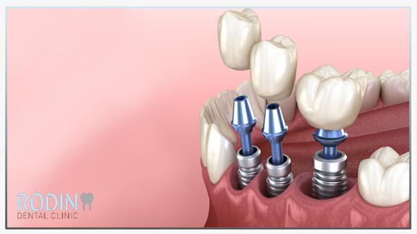 Rodin Dental Clinic implantologie