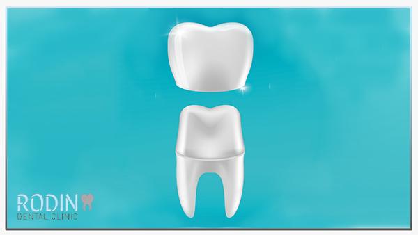 Rodin Dental Clinic kroon en brugwerk