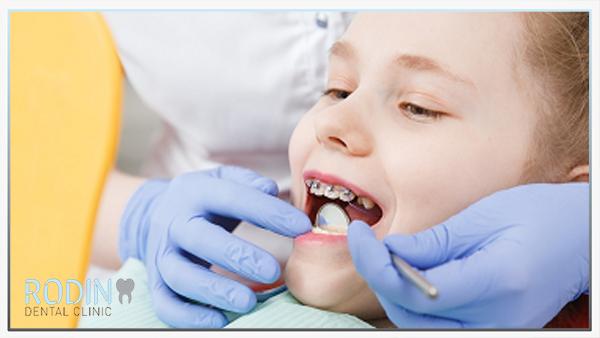 Rodin Dental Clinic orthodontie