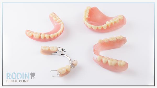 Rodin Dental Clinic prothetische voorzieningen