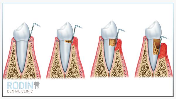 Rodin Dental Clinic tandvleesbehandeling