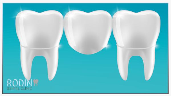 Rodin Dental Clinic bruggen