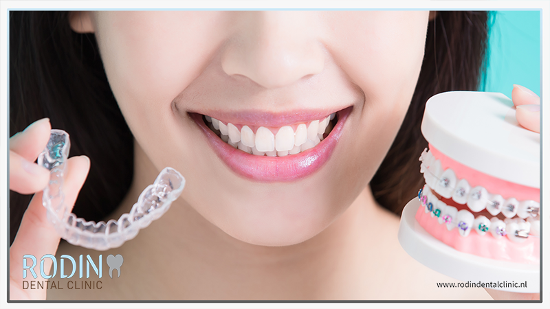 Rodin Dental Clinic orthodontie beugels